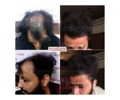 Know About Some Myths Related to Hair Transplantation Treatment