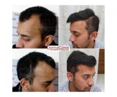 Hair Transplant Facility A Boon to Treat Baldness
